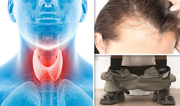 overactive thyroid image