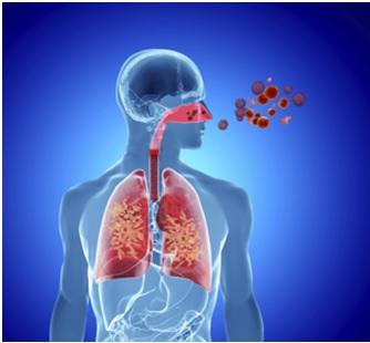 Allergic-Rhinitis image