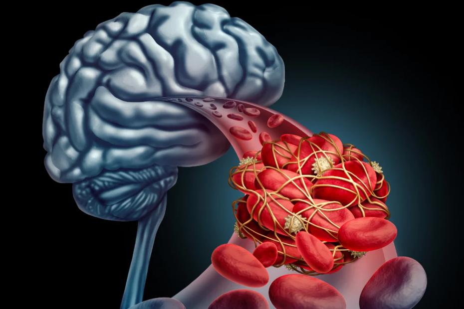 brain blood image