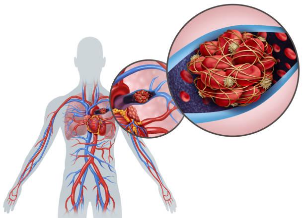 blood clots image