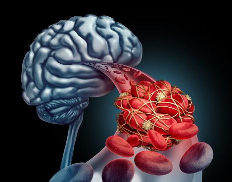 brain & blood image