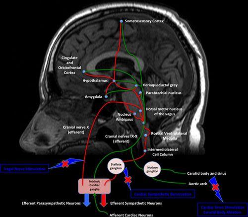heart brain image