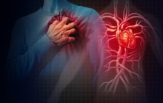 heart disease image