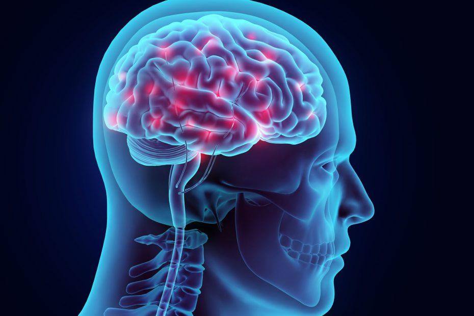 shrinking brain image